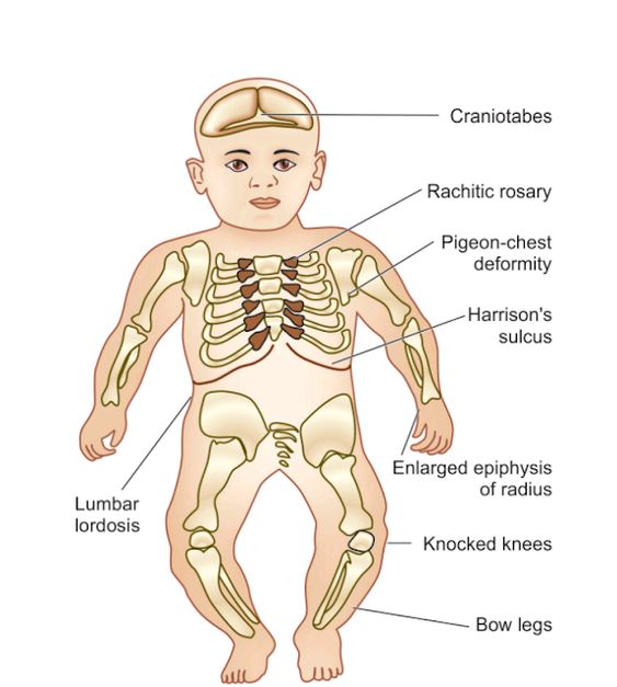 What Are The Symptoms Of Rickets