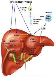 Image result for nonalcoholic steatohepatitis