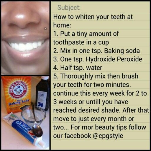 Diy teeth whittening kit! Home kit you can make yourself ...