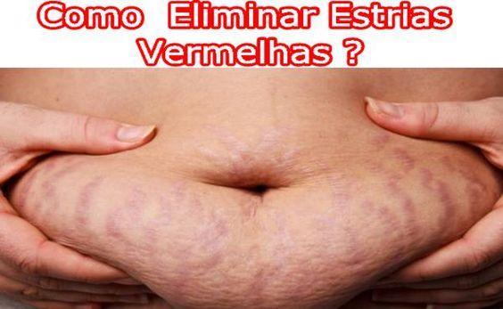 Como Eliminar Estrias Vermelhas com Pedra Hume ? Super Dica ! http://www.aprendizdecabeleireira.com/2016/02/eliminar-estrias-vermelhas-pedra-hume.html