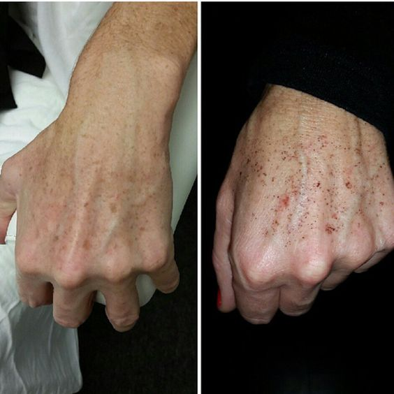 Before and during the process of an IPL treatment.  http://lewisvillelaser.com/site/services/ipl-skin-rejuvenation/