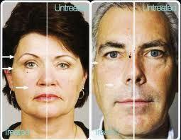 Effetti incredibili dopo uno o più trattamenti con Nu Skin Galvanic SPA Sistem II