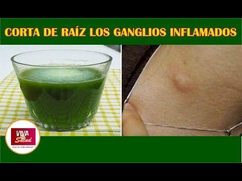 remedios caseros para inflamacion de ganglios del cuello