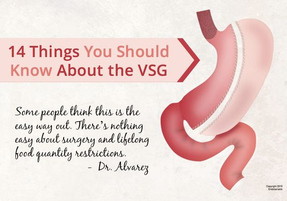 Whether you are pre-op, post-op or considering the VSG weight loss surgery, here are 14 things you should know about the VSG.