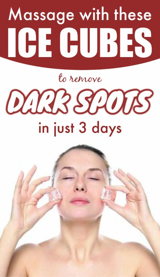 5 Minutes Massage With This Ice Cube, All Dark Spots And Scars Will Disappear From Your Face