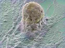 Human embryonic #stemcell By Annie Cavanagh and ave McCarthy