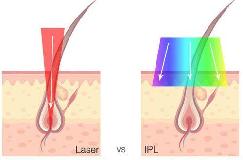 Que Es Mejor La Depilacion Laser O Ipl Dimyth Iplhairremoval Laserhairremov Depilacion Fotodepilacion Tratamientos De Belleza