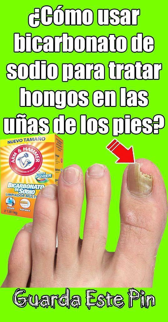 Como Usar Bicarbonato De Sodio Para Tratar Hongos En La Piel Uñas De Los Pies Home Remedies Remedies Messages
