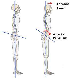 Have a belly pooch? It may be due to tight hip flexors! Try these stretches to improve your posture, alleviate back pain, and rid yourself of the dreaded belly bulge!!  UPDATE: Read the follow up here: http://www.runfrecklesrun.com/2013/10/the-dreaded-pouch-part-2.html  Find other ways to LIVE WELL by visiting www.runfrecklesrun.com/p/live-well.html