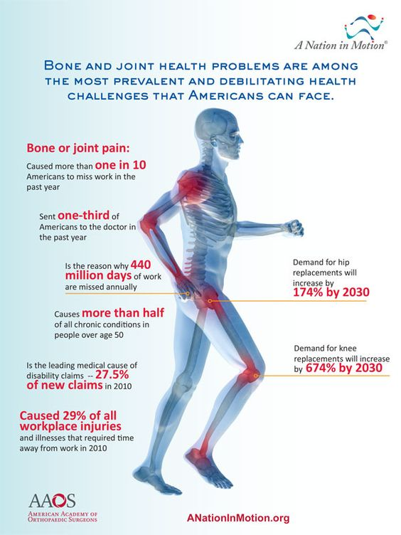 Image result for BONE AND JOINT HEALTH INFOGRAPHICS
