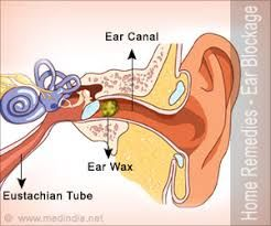 How To Unclog Ears Home Remedies Blocked Ear Remedies Clogged Ear Remedy