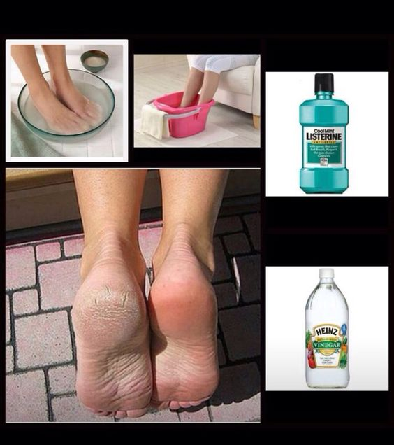 Who knew that of soft feet! All you needed was Listerine and vinegar!