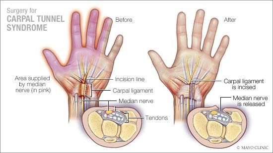 Mayo Clinic Q And A Recovery After Surgery For Carpal Tunnel