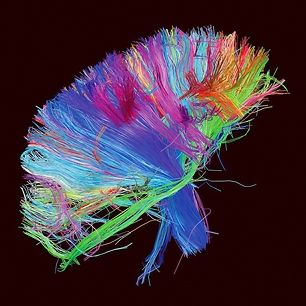 Muse Map Out the Brain on 'The 2nd Law' Album Art | Music News | Rolling Stone