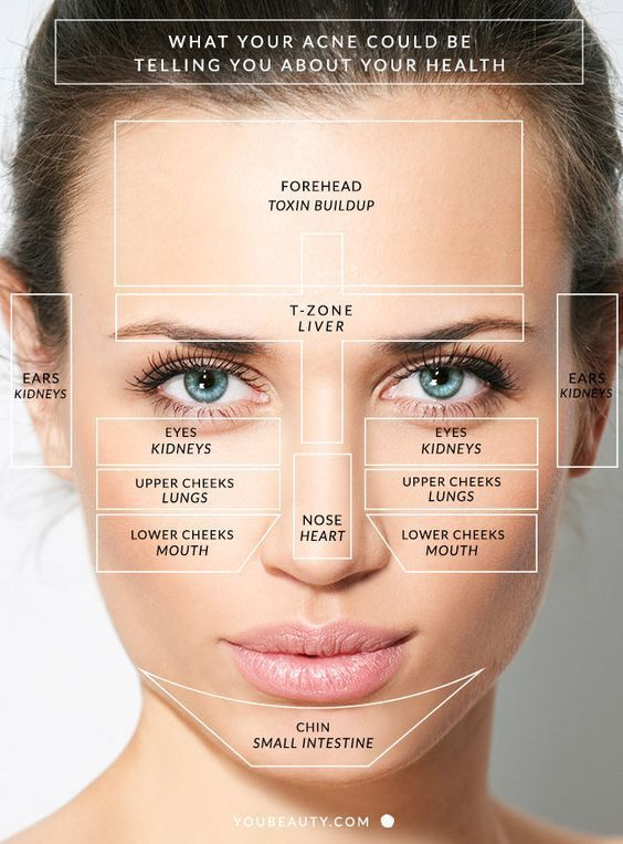 You Will Love To Learn How To Conduct Chinese Face Mapping Skin Analysis And We Have A Number Of Charts And Video Inst Face Mapping Acne Face Mapping Face Acne