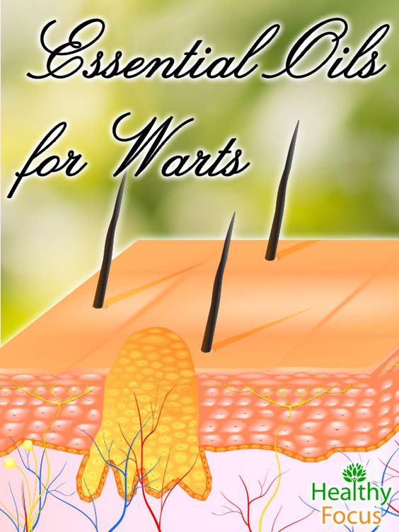 Warts are typically flesh-colored and have a rough texture. Some warts may also appear to be brown, smooth, or flat. Fortunately, there are all natural alternatives, such as essential oils, to treating this pesky skin virus.
