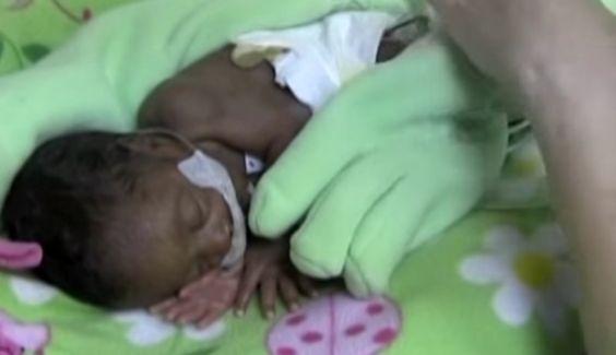 Sie lässt einen Handschuh auf ihrem zu früh geborenem Baby! Die Schwestern sind zutiefst gerührt am nächsten Tag als sie dies sehen!