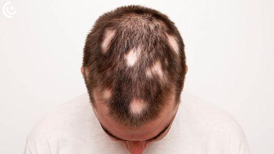 The Causes And Treatment Of Alopecia Areata