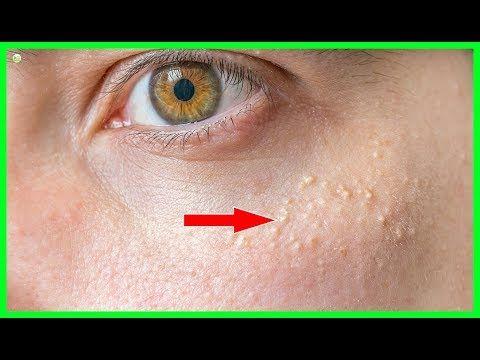 95118da4cb7dddcd30783aea9ebf0fe3 - How To Get Rid Of Hard White Bumps On Face