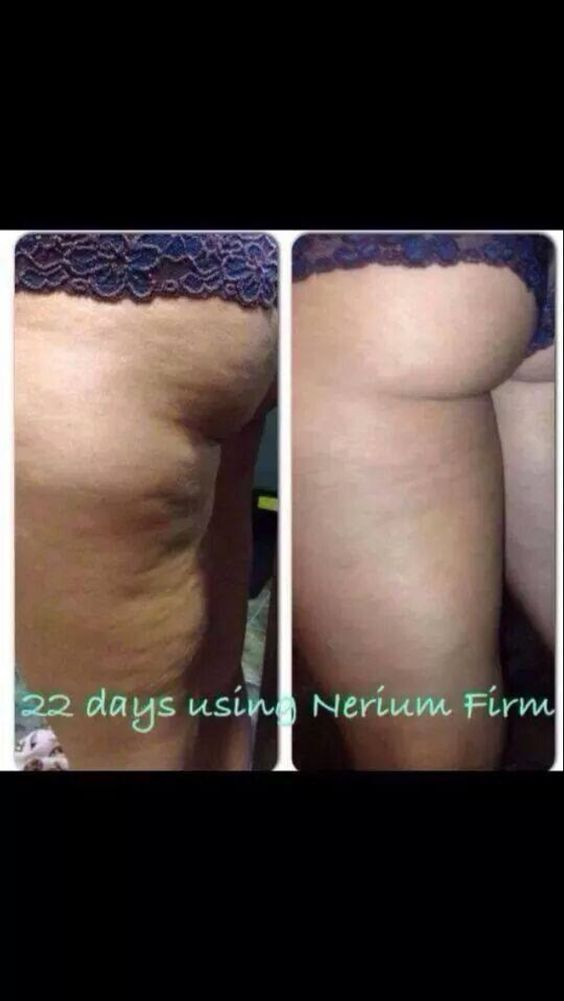22 days using Nerium Firm! What are you waiting for? Contact me today for details. www.dilachapelle.nerium.com/