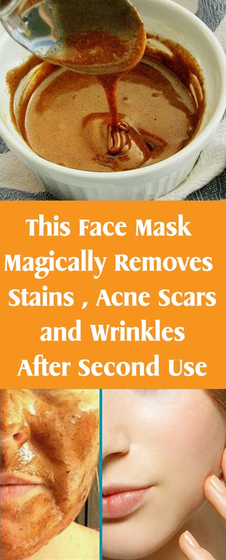 This Face Mask Magically Removes Stains , Acne Scars and Wrinkles After Second Use...
