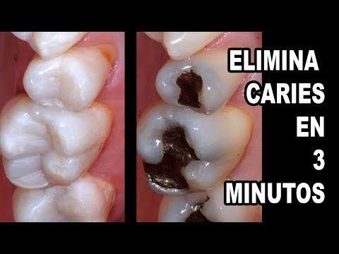 Aprende A Como Curar La Caries Dental De Forma Natural Youtube