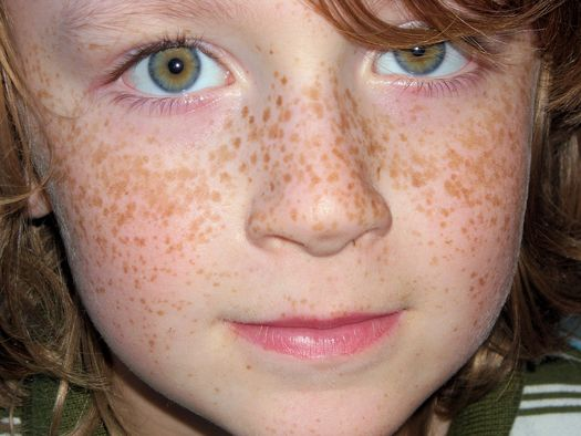 Pourquoi les taches de pigment du bronzage