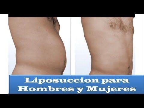Video de Liposuccion para hombres y mujeres en Bogota describiendo el postoperatorio y cómo la liposuccion elimina esos gorditos indeseables en cara y cuerpo #liposuccion #bogota #liposuccionbogota