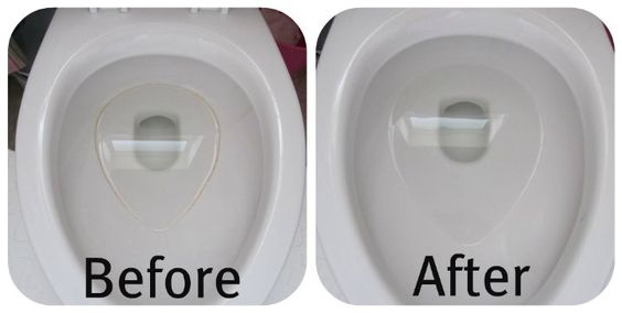 How to get rid of toilet bowl ring.