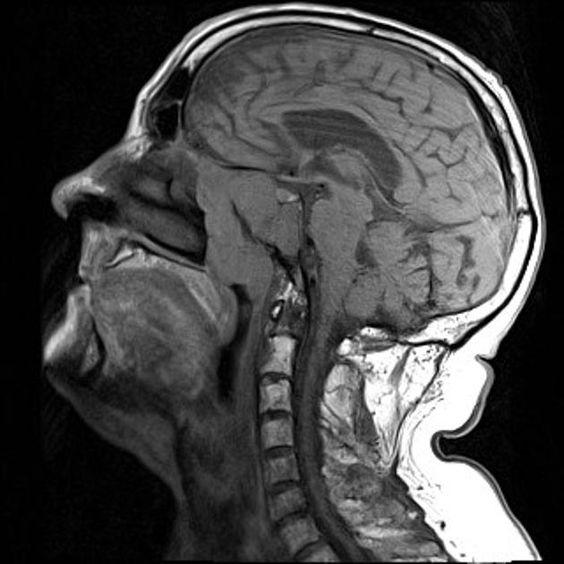 Pathology case studies radiology