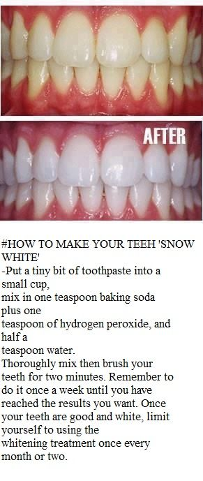 How to Make Your Teeth ''Snow White''