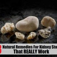 8 Natural Remedies for Kidney Stones That Really Work