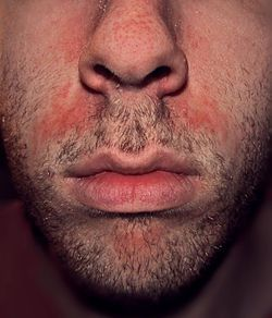 Seborrhoeic dermatitis - another lovely consequence of an ED