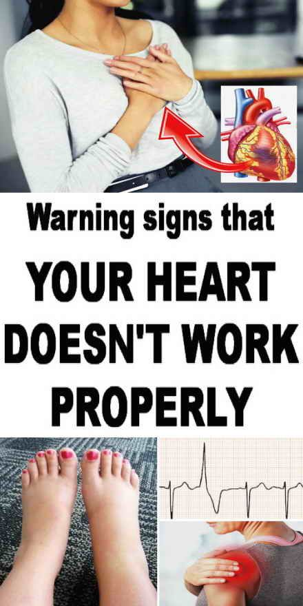 Signs of a heart disease everyone should know...