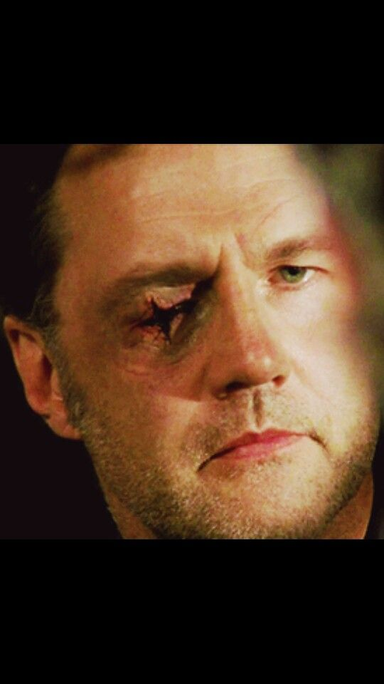 The governors eye scar