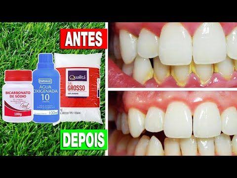 Como Tirar Tartaro Dos Dentes Em 3 Minutos Receita Caseira Para
