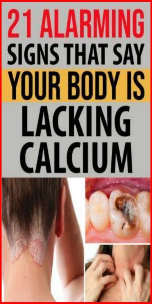 96f37bb71a89f5b5d688a8518aa23899 - How To Get Rid Of Excess Calcium In The Body