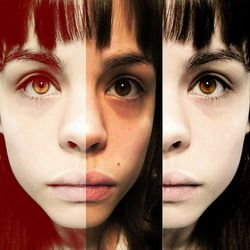 Histrionic Personality Disorder– Causes, Symptoms, Diagnosis, Treatment and Ongoing care