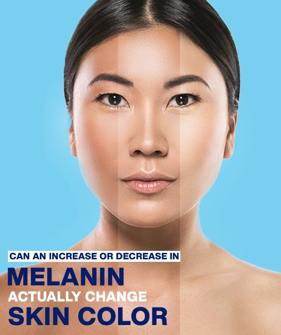Can An Increase Or Decrease In Melanin Actually Change Your Skin Color Skin Color Light Skin Tone Skin