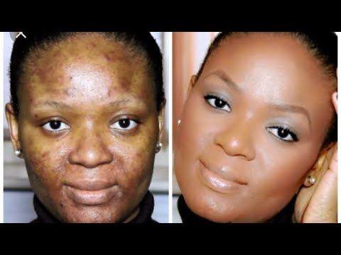 Solution Miracle Et Gratuite Pour Enlever Les Taches Noires Vergetures Peaux Infectes Youtube Taches Noires Masque Hydratant Visage Tache Visage
