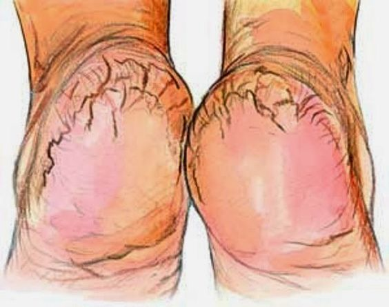 Some Of The Best Home Remedies For #Cracked Heels