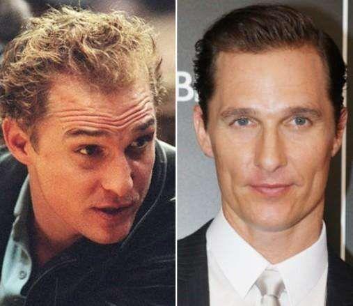 Celebrity Hair Loss: John Travolta Bald Photos Leak