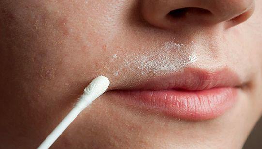 Remedio Natural Para Eliminar El Vello Facial Para Siempre