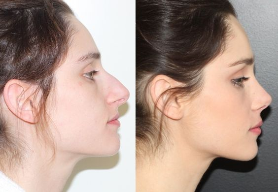 Nose surgery, before and after.
