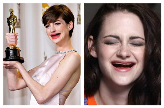 Start brushing STAT! Celebrities with teeth photoshopped out ...