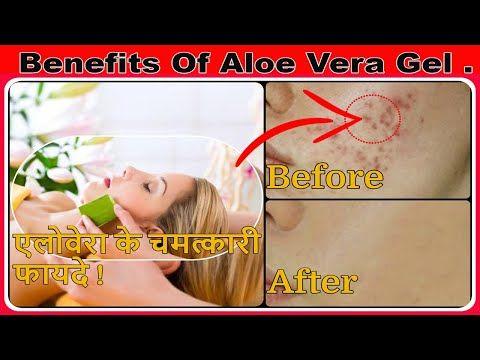 Benefits Of Aloe Vera Gel In Hindi Skin Care During Lockdown Aloe Vera Gel Healthtakers Youtube In 2020 Aloe Vera Gel Aloe Vera Aloe