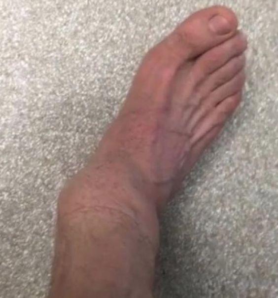 Famoso comediante de Jackass comparte horripilante fotografía de fractura en sus pies