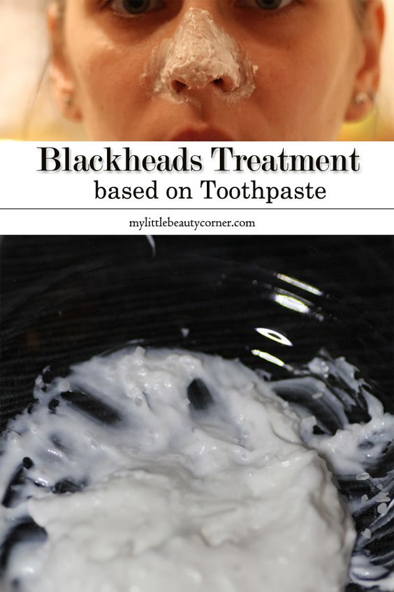 how to get rid of blackheads toothpaste