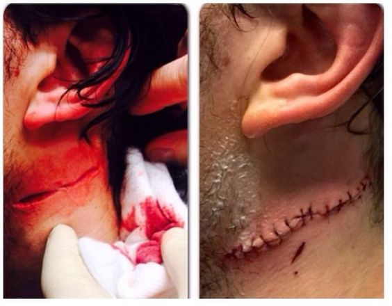 Michael Del Zotto's neck after getting cut by skate