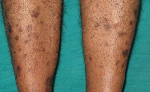 98394f8dd872791b642c2112835298fa - How To Get Rid Of Blue Marks On Legs